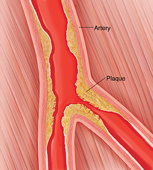 Cross section of peripheral artery with plaque buildup.